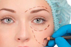 eyelid plastic surgery hospitaly UCBM rome